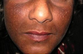 De pigmentation2