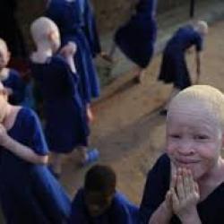 Le Bénin lance une croisade en faveur de la protection des enfants albinos
